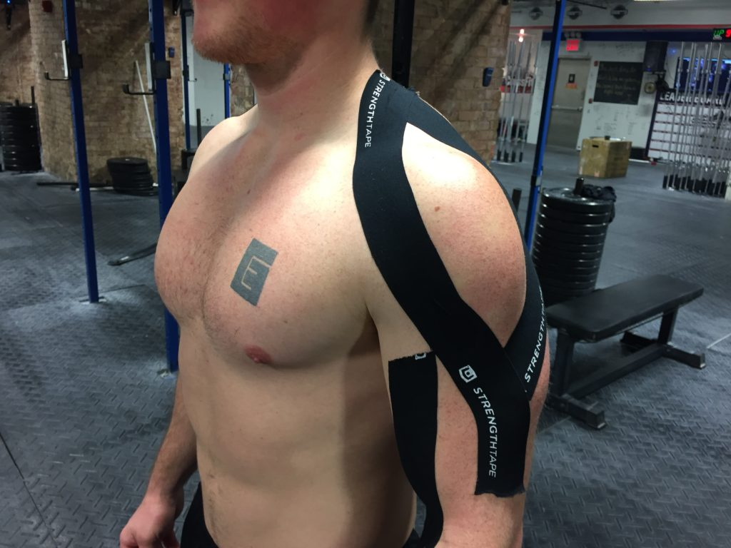 StrengthTape Kinesiology Tape Application