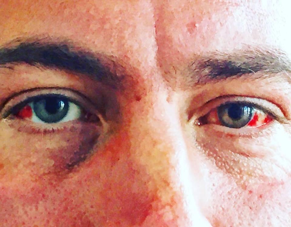 Martin Tye's eyes