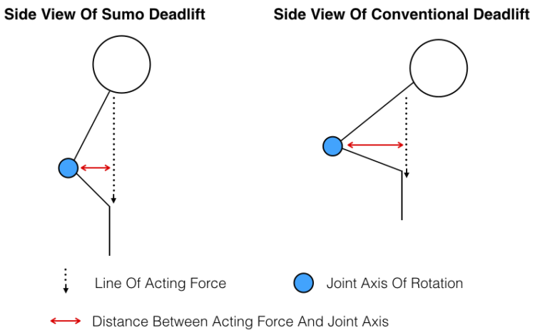Side View Of Conventional And Sumo Moment Arms